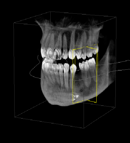 3D radiography